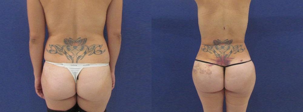 Brazilian Butt Lift before and after photos