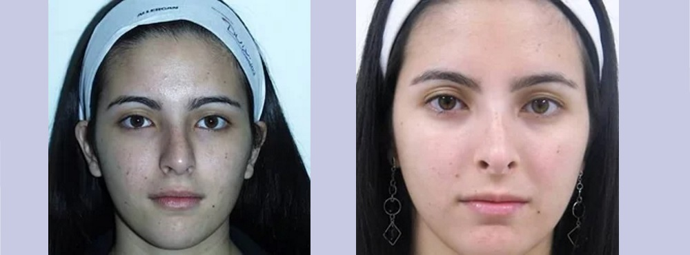Nose Job before and after photos