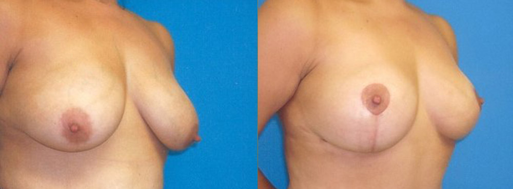 mastopexy before and after photos