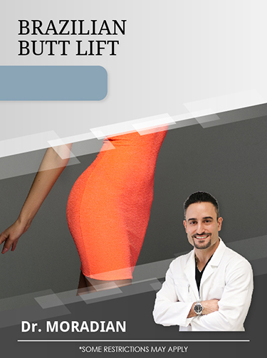 Brazilian Butt Lift with Dr. Moradian for $4,000 Special Offer Image