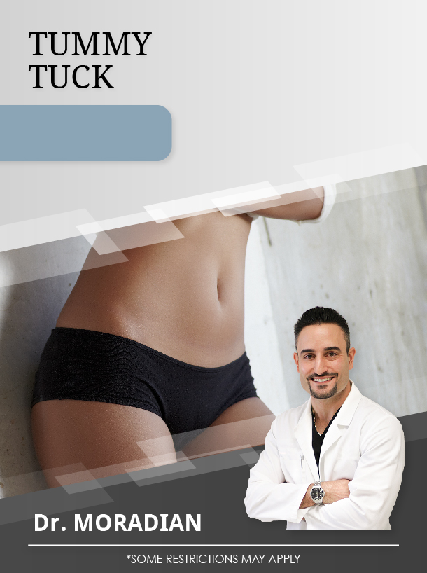 Tummy Tuck + 2 Areas Lipo with Dr. Moradian for $4,500 Special Image