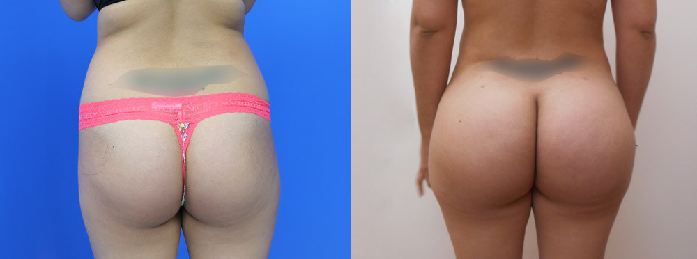 Brazilian Butt Lift Miami before and after